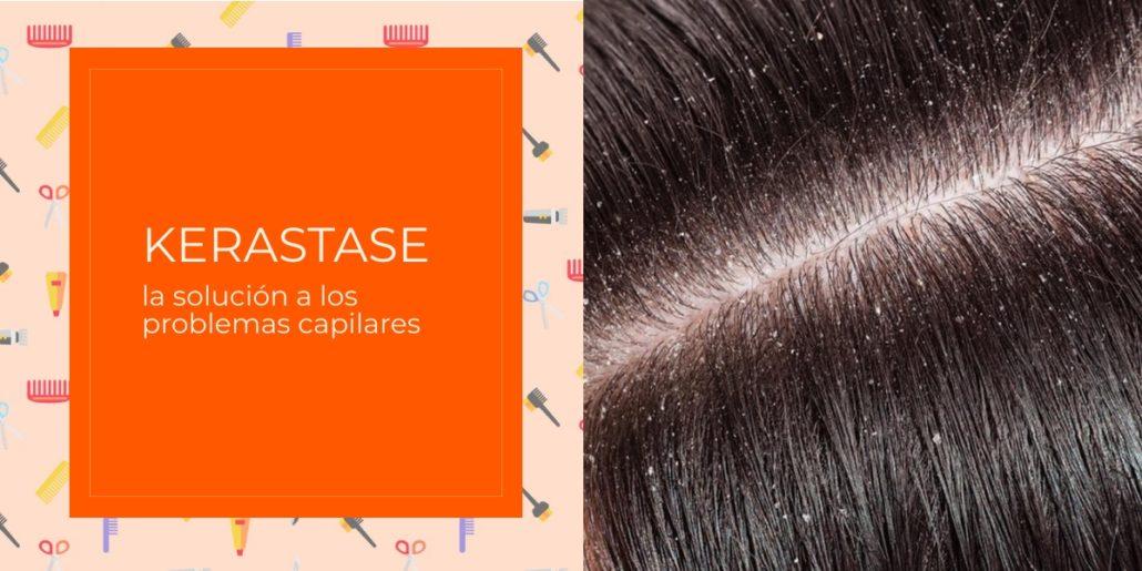 tratamientos para cuero cabelludo